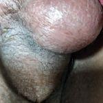 Periurethral abscess