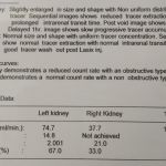 Right HN- 21 years female patient
