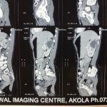 Renal abscess
