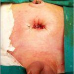 Bocksome Vesicostomy-By Prof. S S Joshi